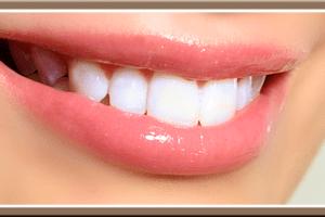 Най-добрите средства (комплекти) за избелване на зъби